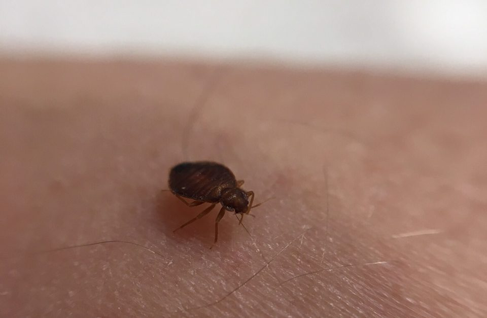 bed bug biting