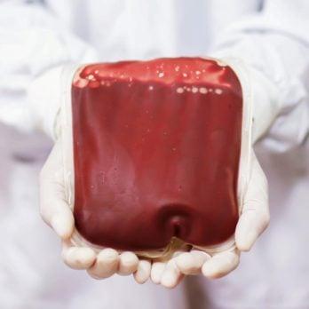blood bag doctor transfusion