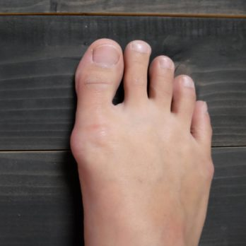 7 Ways to Treat Bunions (Without Surgery)