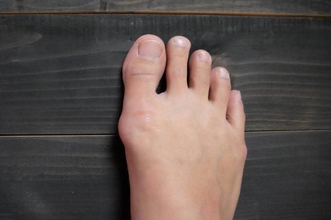 foot bunion