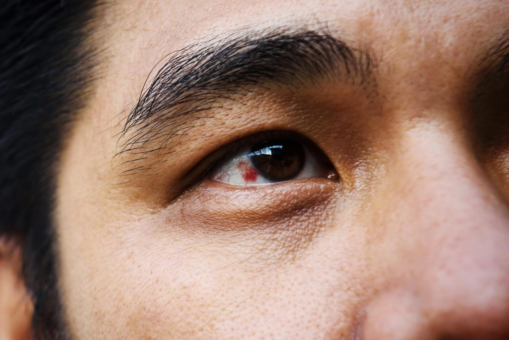Red Spot on Eye: What It Could Mean | Reader's Digest