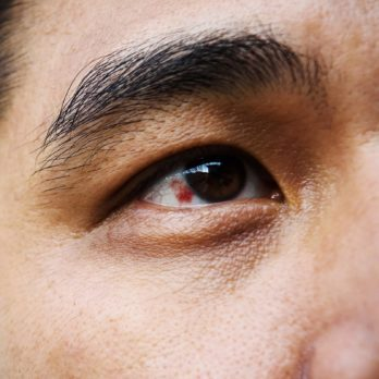 This Is What It Could Mean if You Have a Red Spot on Your Eye