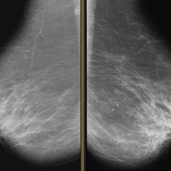 "This Type of Mammogram Could ""Significantly Reduce"" Unnecessary Cancer Scares"