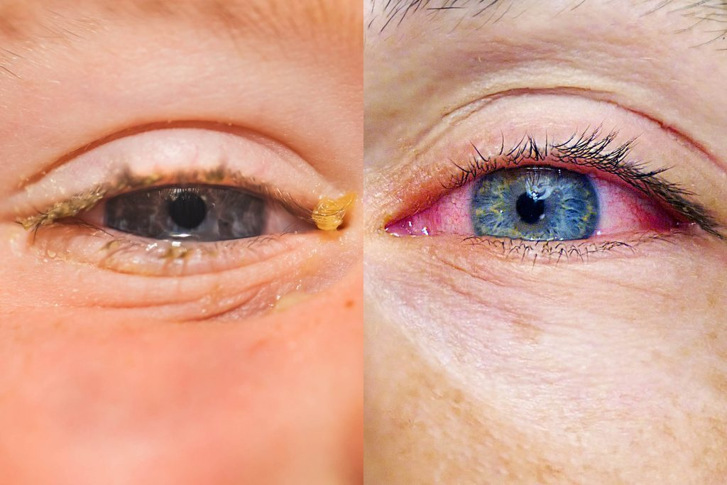 Allergies or Pink Eye: Here's How to Tell the Difference ...