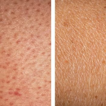 How to Get Rid of Strawberry Legs: 5 Treatments That Work