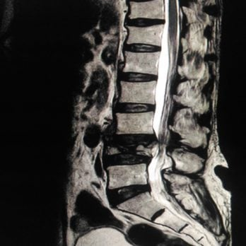 12 Signs Your Back Pain Is Actually Ankylosing Spondylitis