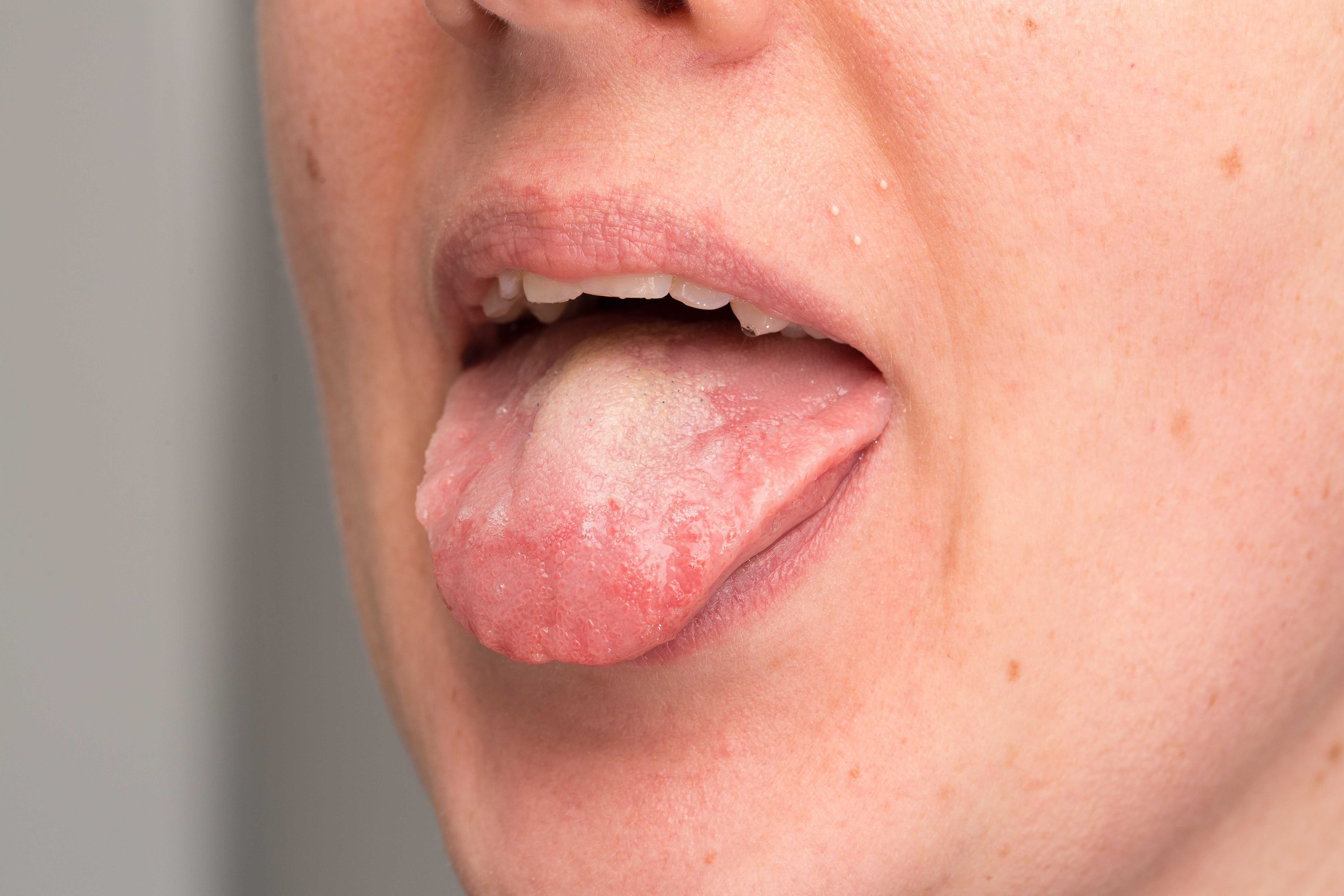 Candid albicans infection on tongue of woman