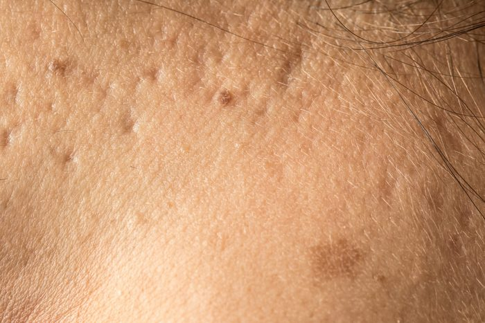 Pocked skin with acne marks