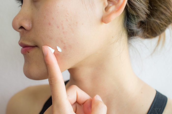 Portrait of young Asian woman having acne problem. Applying acne cream on her face.