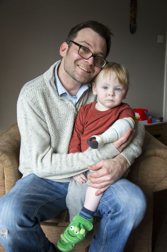 Father creates bionic prosthetic arm for baby son, Anglesey, Wales, UK - 01 Mar 2017