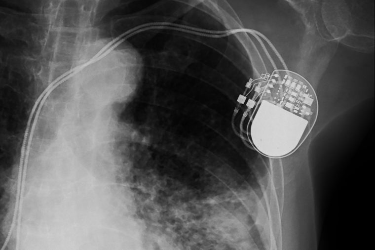 hacking medical devices