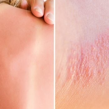 Heat Rash or Sunburn: Here's How to Tell the Difference