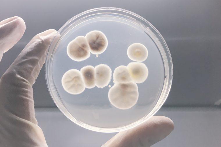 Agar plate full ofmicro bacterias and microorganisms
