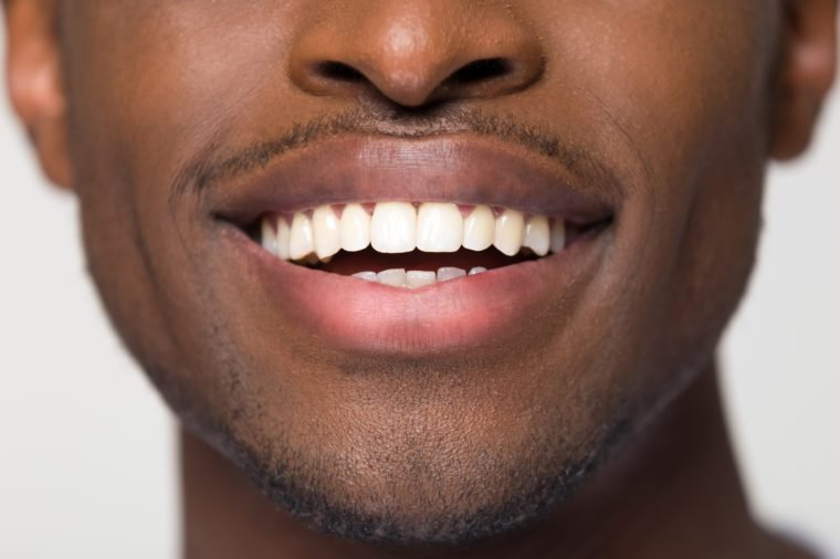 Close up view of beaming orthodontic white wide male smile, african black man with healthy straight clean teeth isolated on grey studio blank background, tooth health care whitening dentistry concept