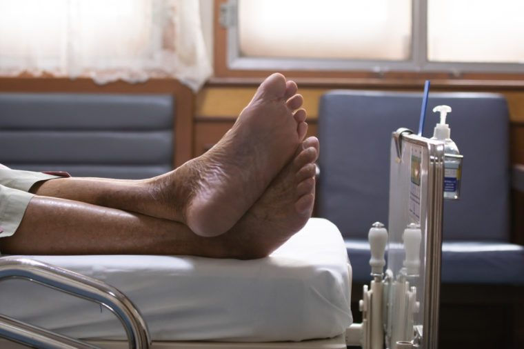 Close up feet of elderly over 80 s Asian man patient lie down on bed after chemotherapy of liver cancer in hospital ward room, senior man lie down on bed in hospital waiting the doctor examining.