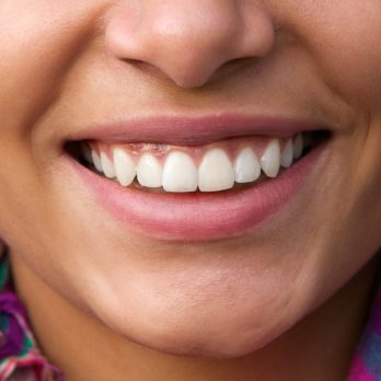 How to Get Whiter, Brighter Teeth