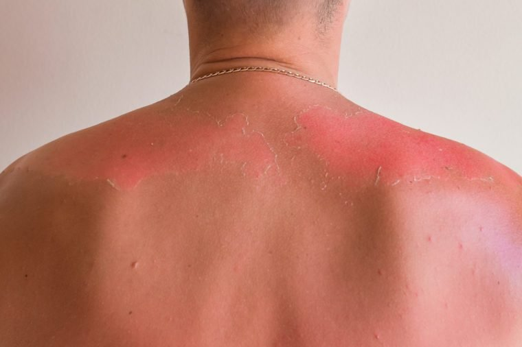 Sunburned man. Sunburned heavily, white skin versus very dark red and burned