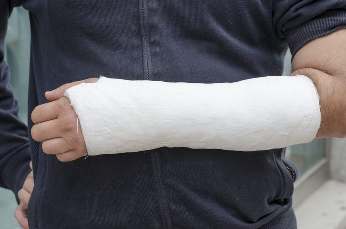 Man with his broken arm. Arm in cast, face not visible.