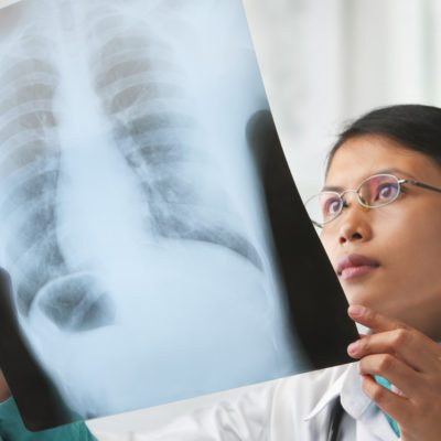 Female doctor checking xray image. focus on the xray image (with some grain or noise from it)