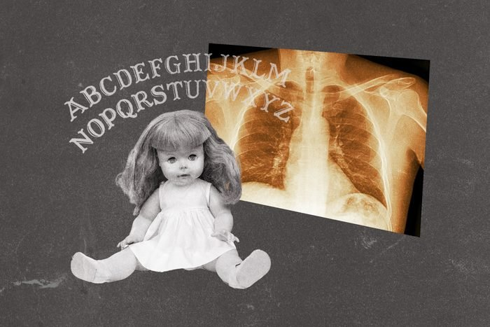 Ouija letters collaged with x-ray chest scan and doll