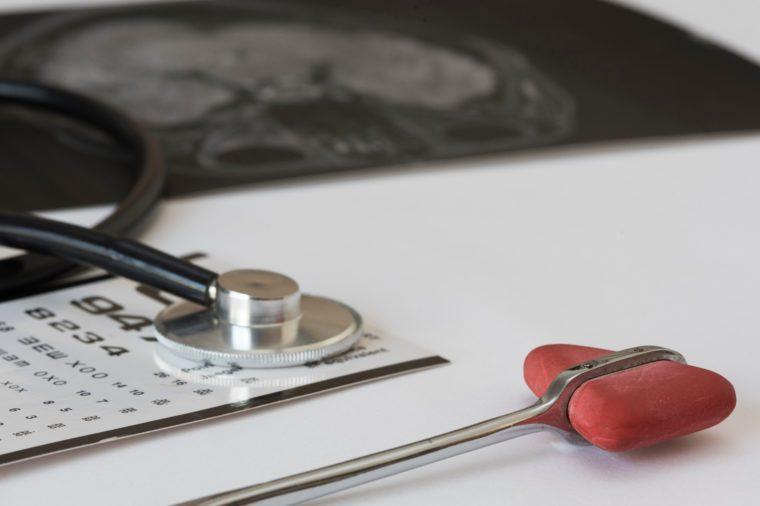 Reflex hammer, black stethoscope, snellen chart, MRI brian picture on white background