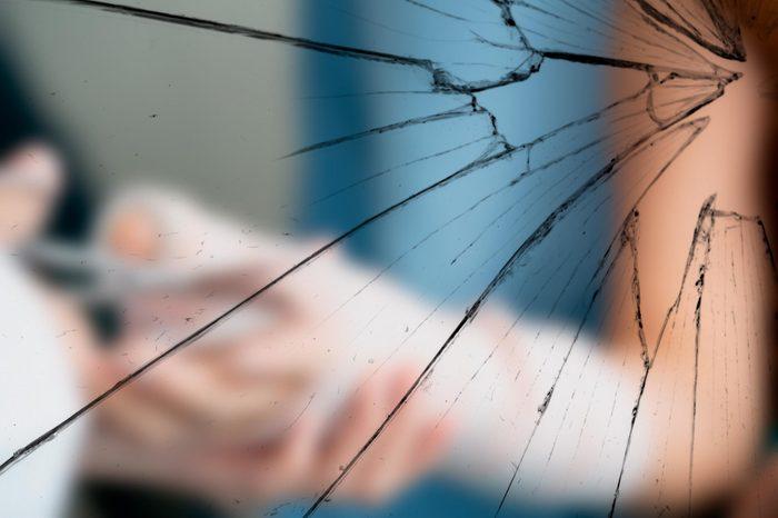 Close up of cutting splint from woman patient arm using sharp scissor.