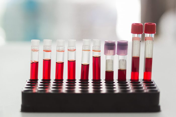 Blood Test tubes in laboratory , in the hospital.