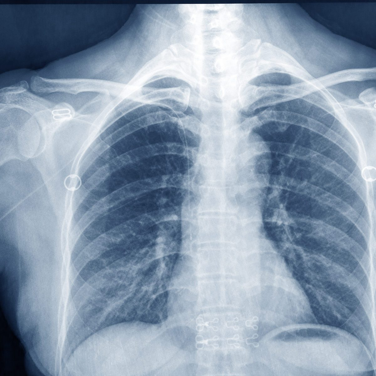 The X-Ray Was Invented 124 Years Ago This Month: See the First One