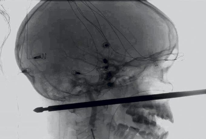 X-ray of Xavier's skull and the skewer