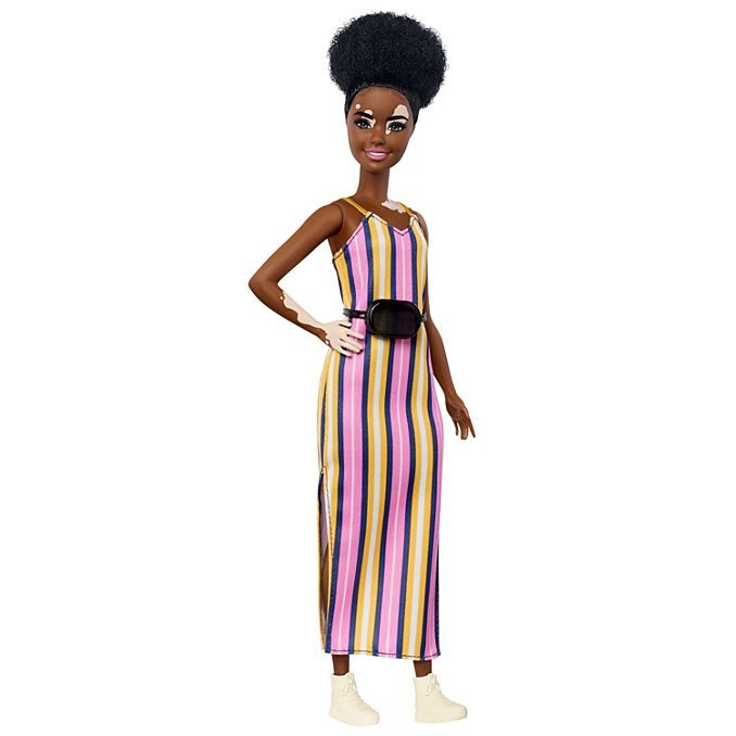 barbie skin condition fashionista vitilago