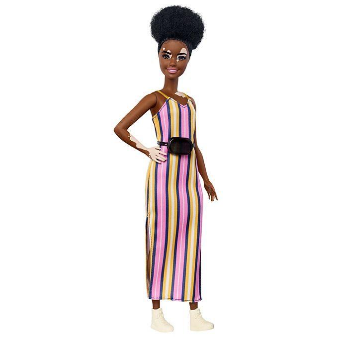 barbie skin condition fashionista vitilago