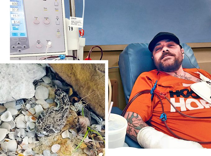 beheaded snake and jeremy sutcliffe in the hospital