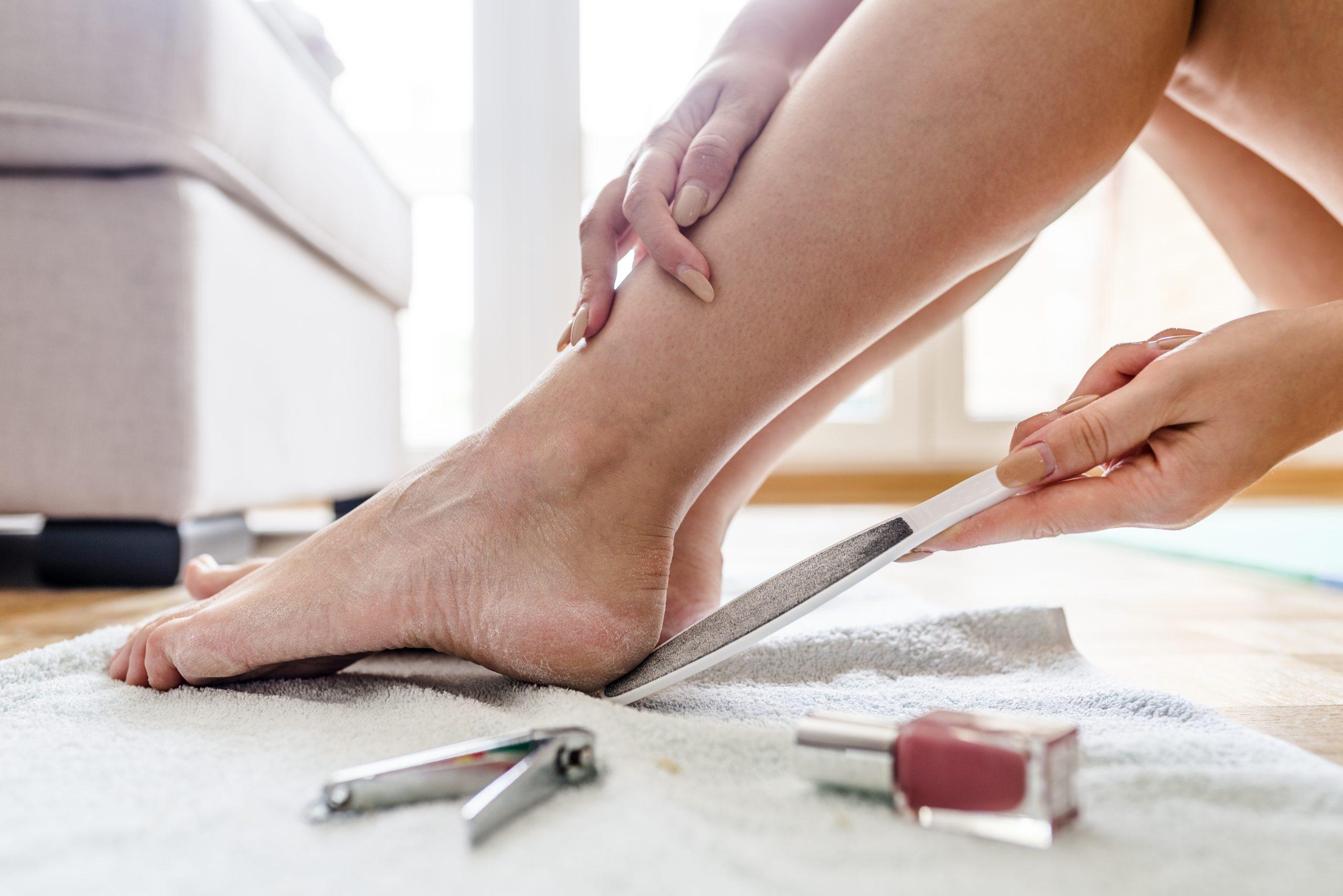 Dry heels woman.