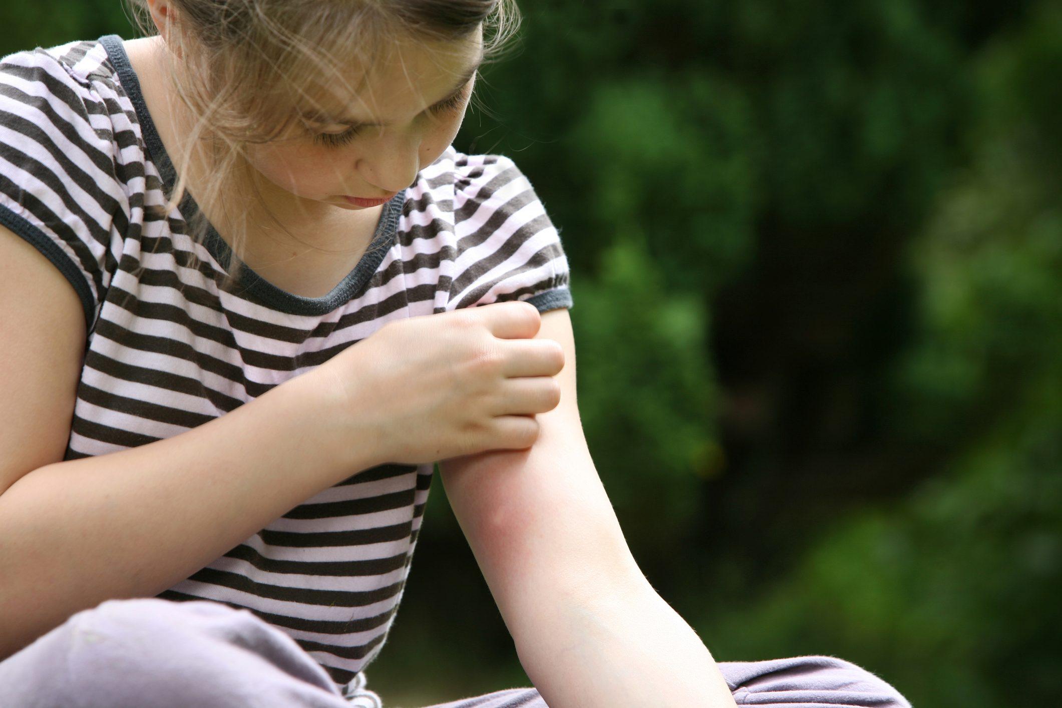 big mosquito bite