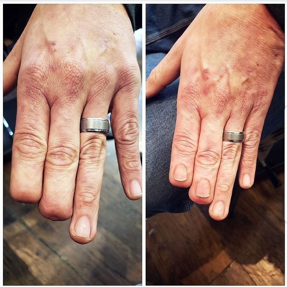 tattooed fingers, before and after