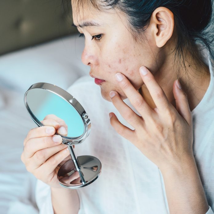 Woman examining acne in magnifying mirror