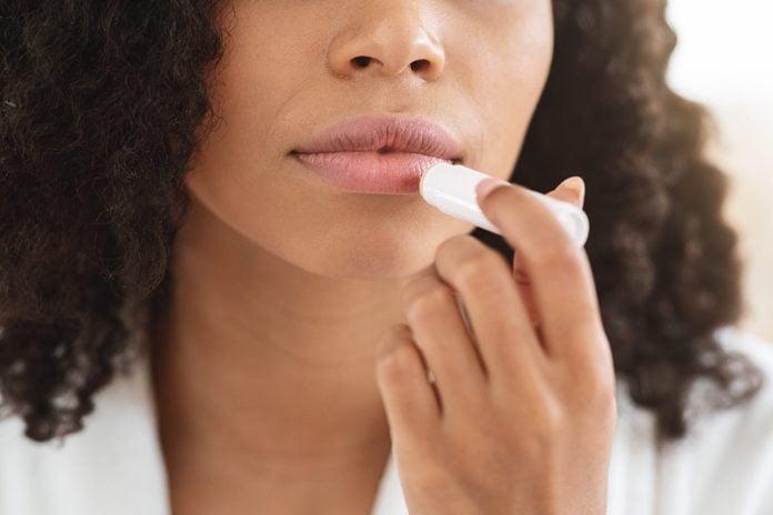 Chapped Lips Remedies. Closeup Of Black Woman Applying Chapstick Moisturizing Lip Balm