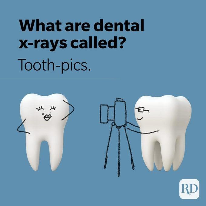 Tooth pics x-ray joke