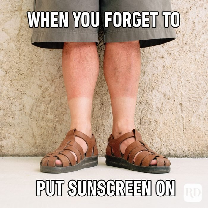 When You Forget To Put Sunscreen On