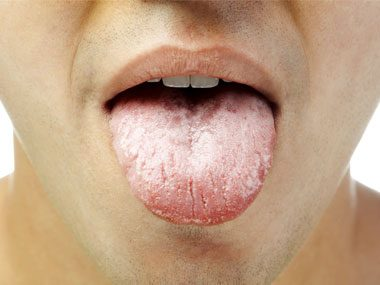 9 Secrets Your Tongue Reveals About Your Health Reader S