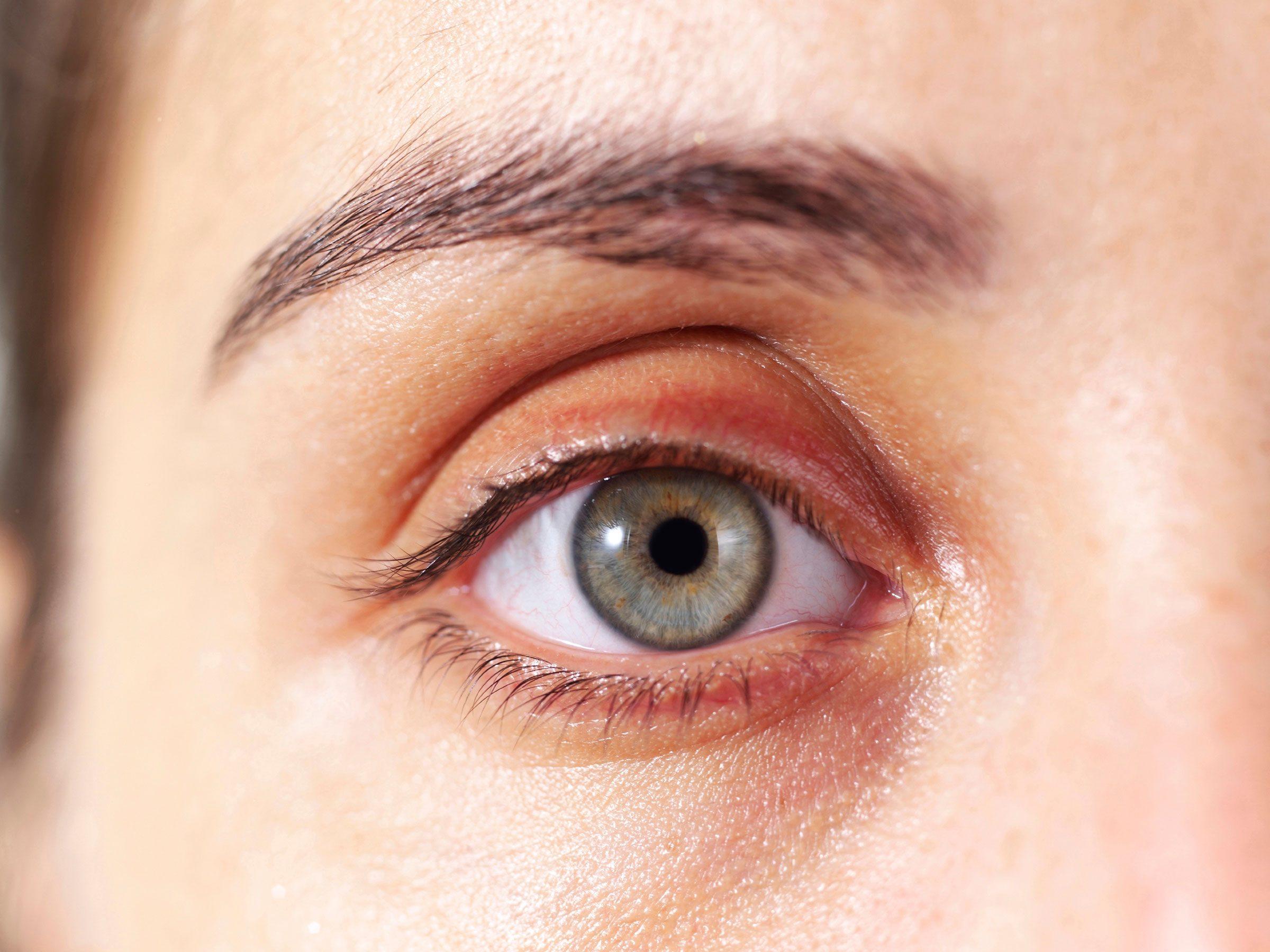 Soft, yellow spots on eyelids