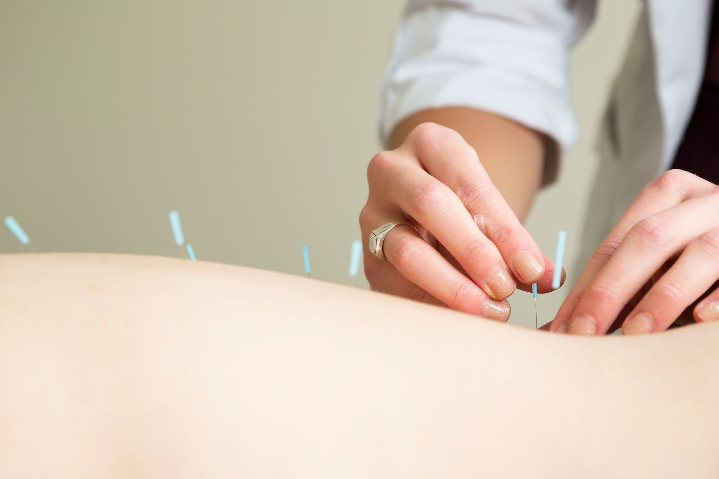 Try acupuncture.