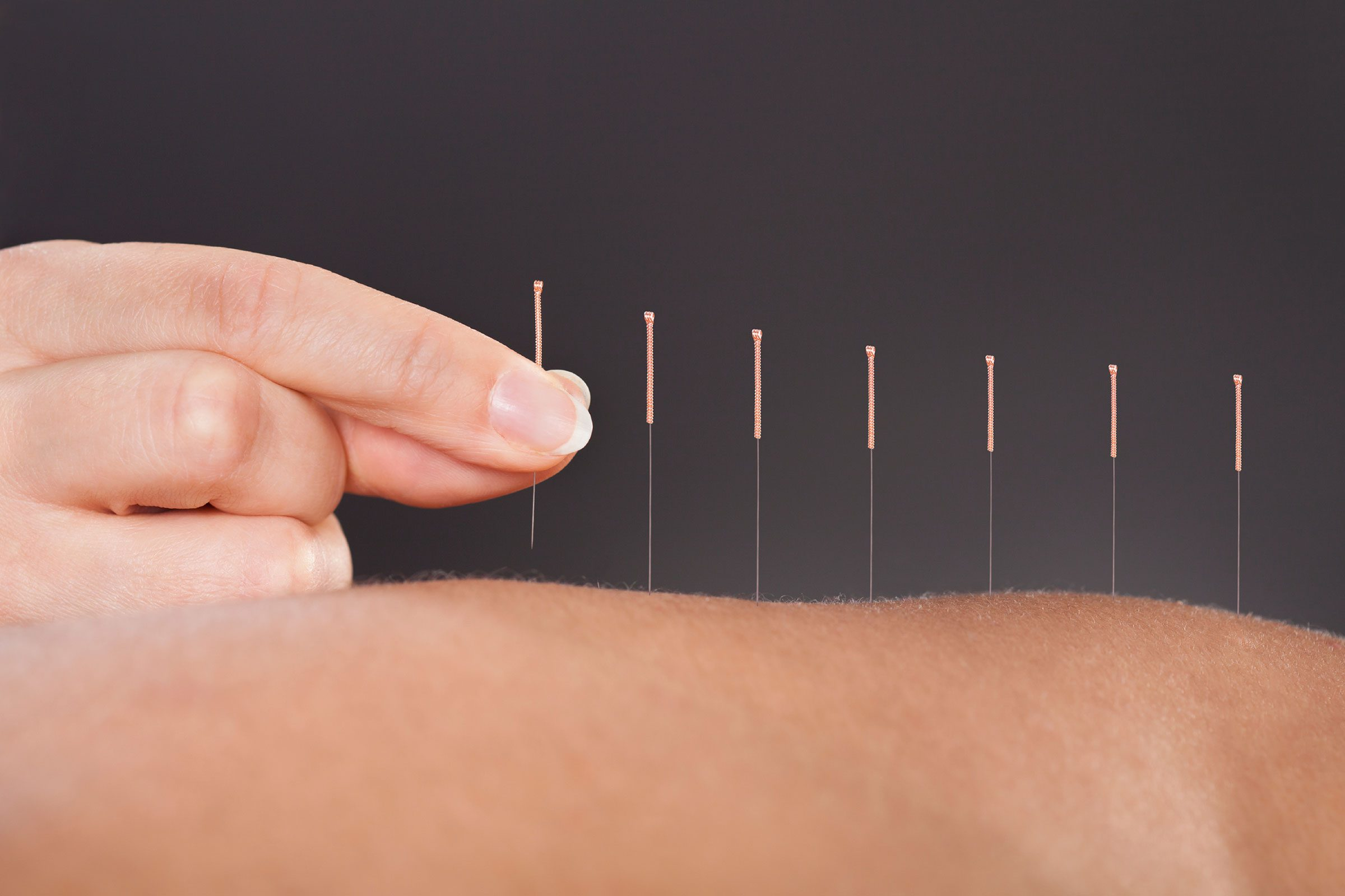 Works For Some: Acupuncture