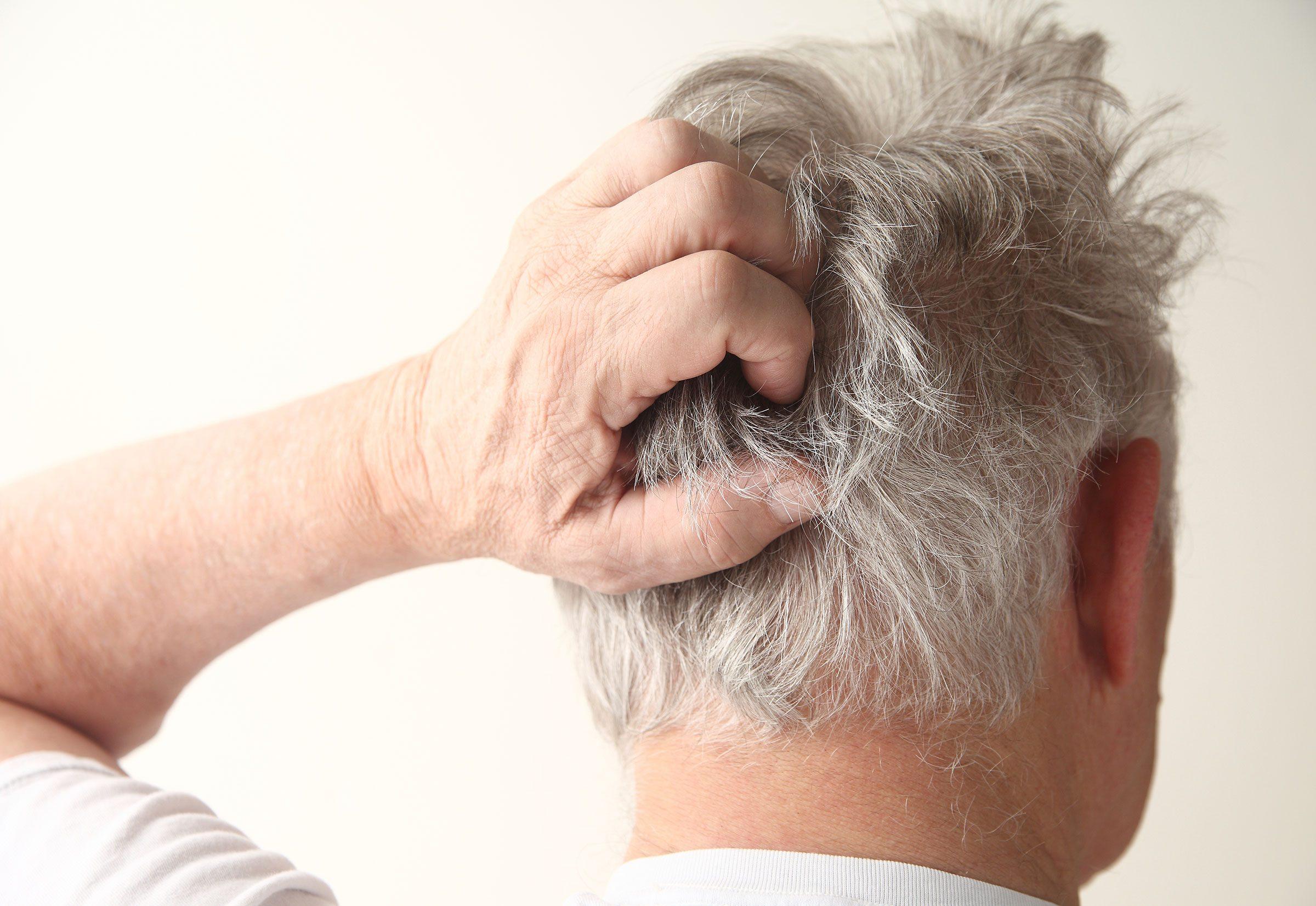 Vous êtes sensible aux champignons de vos propres cheveux