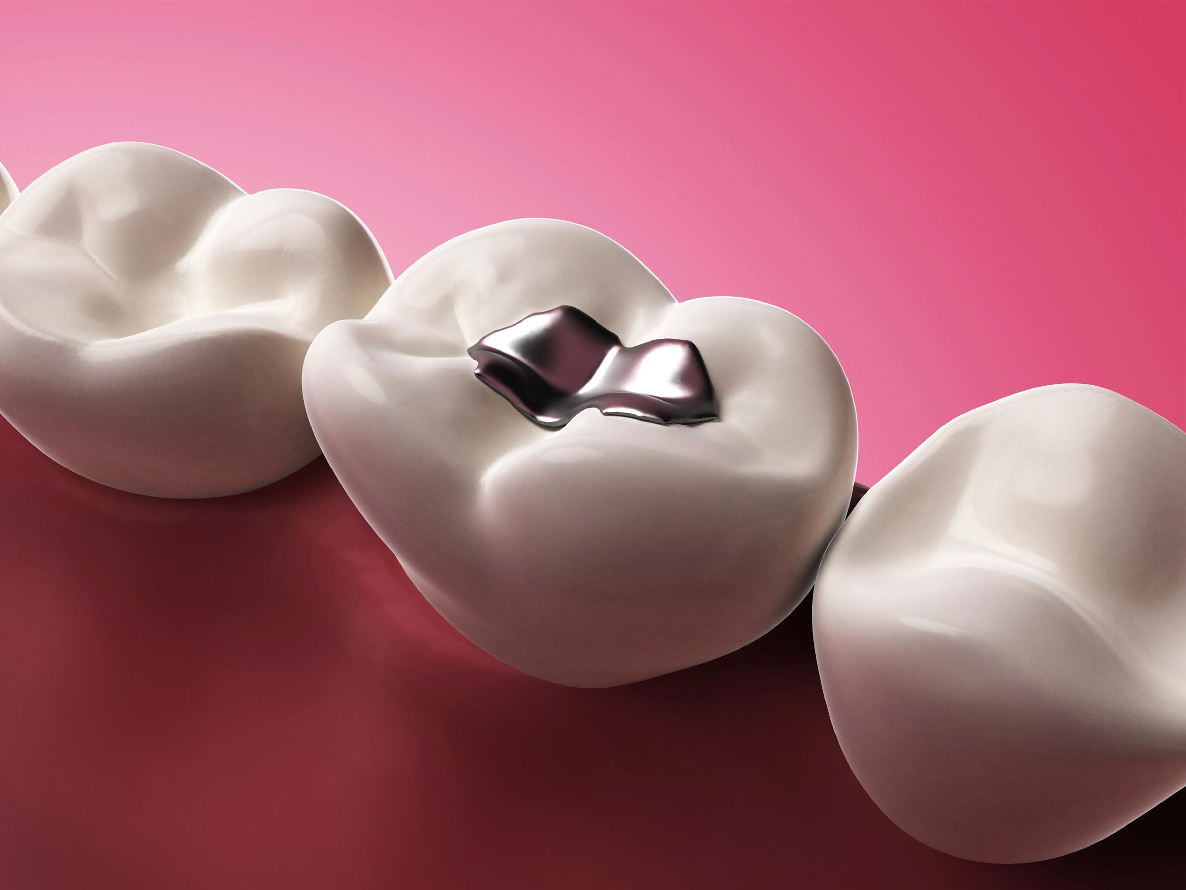 18. That may be real gold in your loved one's dental fillings or crowns,