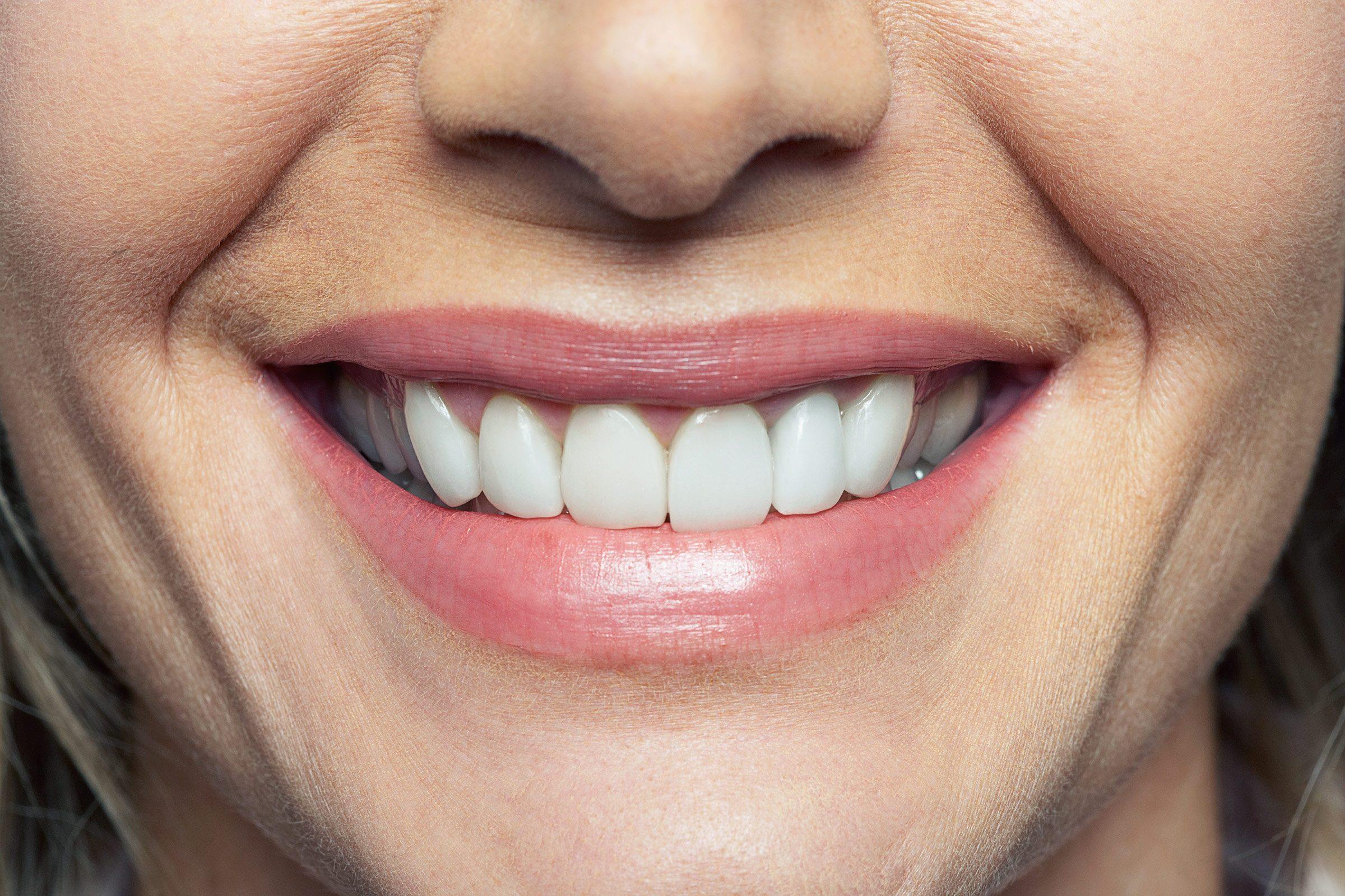 Dental Problems Body Diseases Teeth Reveal  Readers Digest-9051