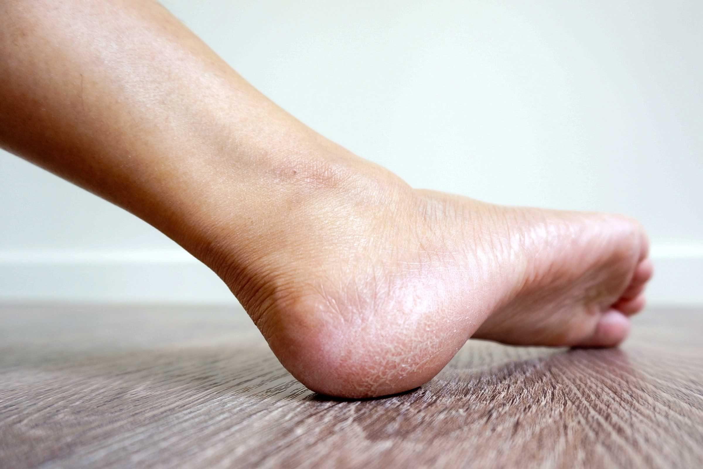 ส้นเท้าแตกเพราะรับน้ำหนักตัวเยอะ