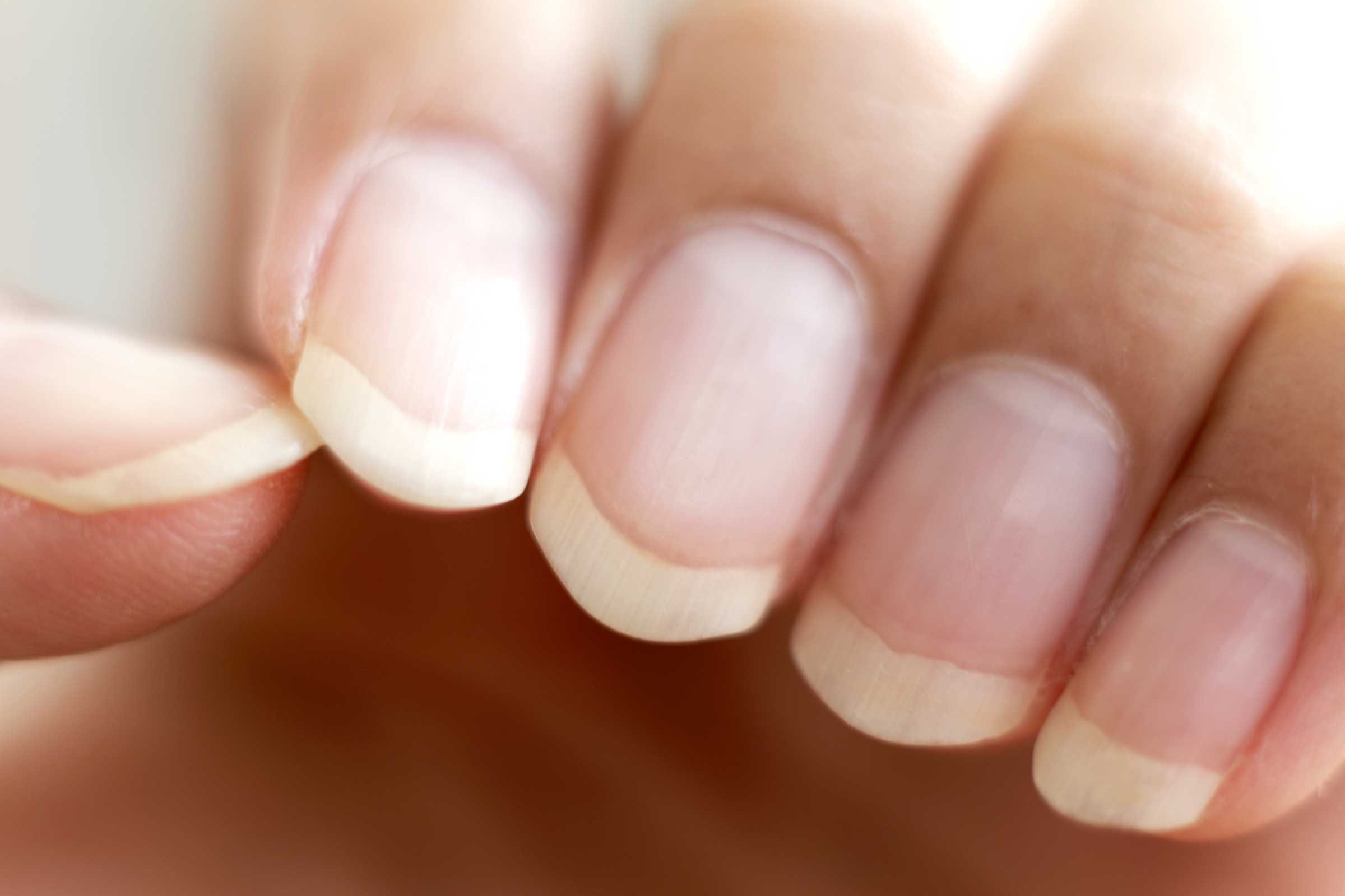 Line Texture On Nails : What fingernail health reveals about your body reader s