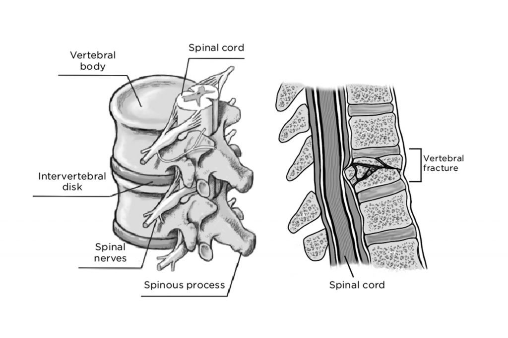 how to treat a spinal cord injury