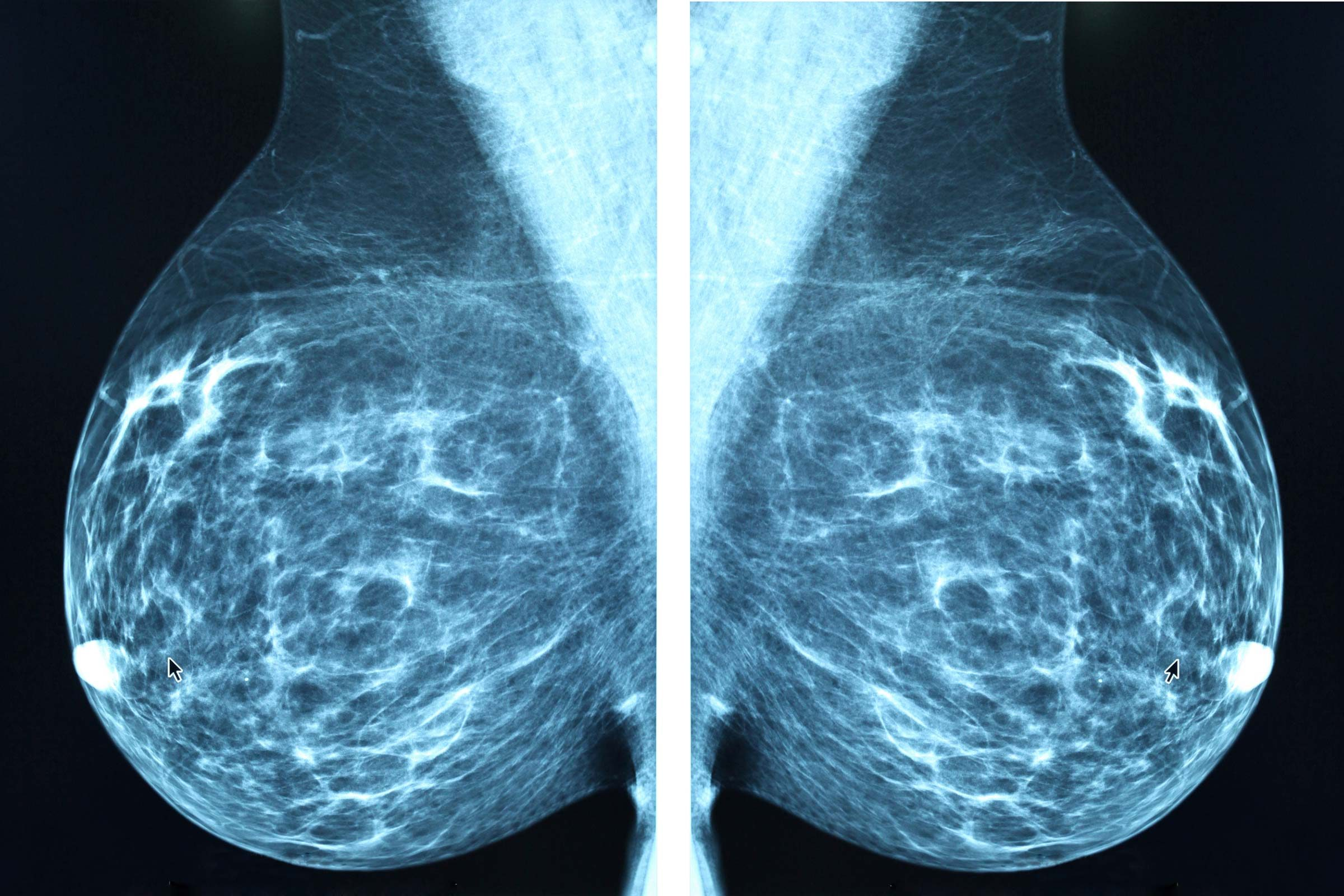 Abnormal Mammogram: Questions to Ask | Reader's Digest